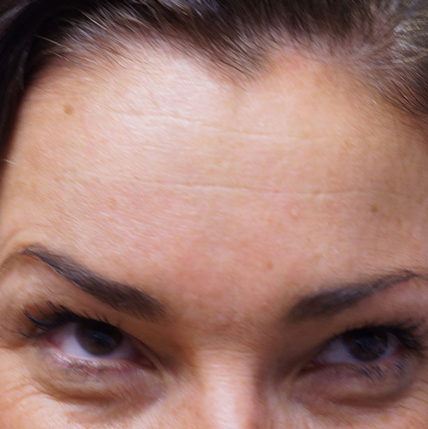 Anti-wrinkle-treatment-after