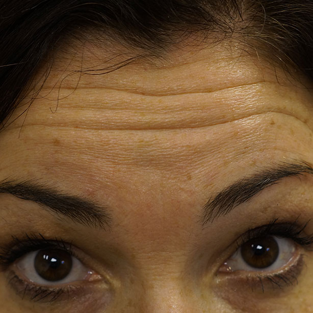 Anti-wrinkle-treatment-before