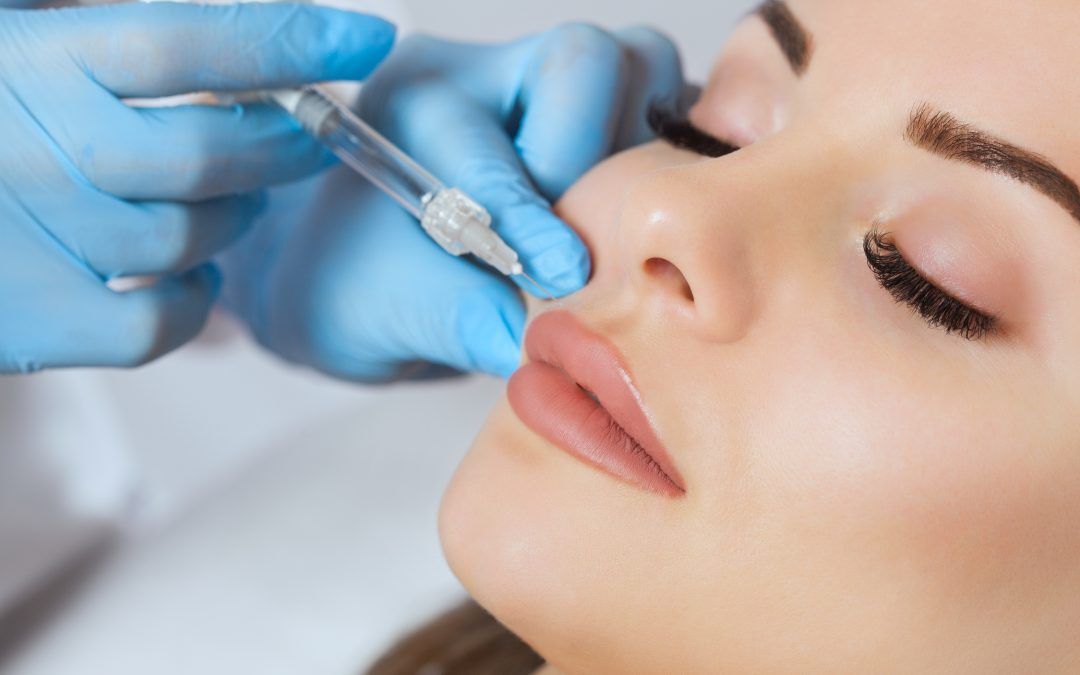 Prep Your Smile For Lip Fillers