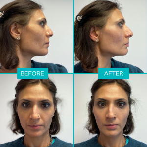 dermal-fillers-before-after