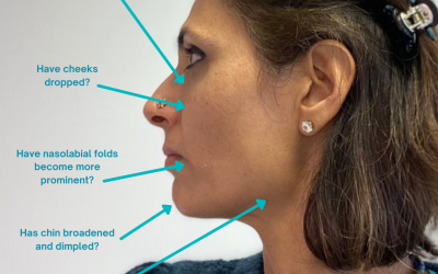 How do I know if I need dermal fillers?