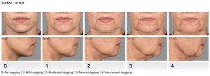 dermal-fillers-jaw
