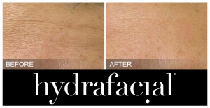 Hydrafacial-before-after-wrinkles